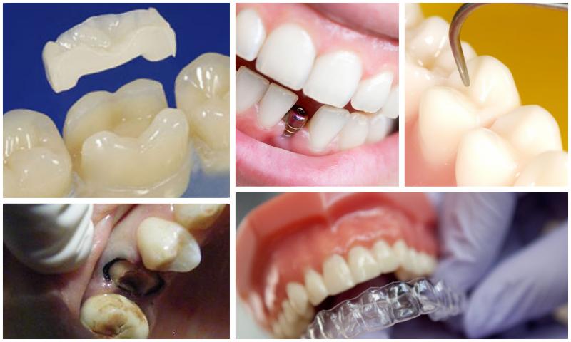 Diş Problemlenize Anında Çözüm