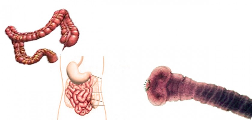Kancalı Kurt Hastalığı Nedir?