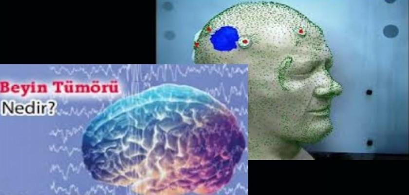 Beyin Tümörü Nedir Hangi Belirtileri Gösterir