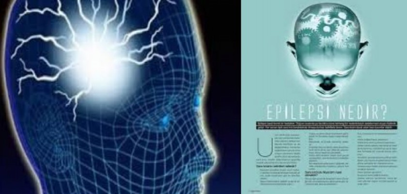 Epilepsi Nedir Belirtilerinelerdir?
