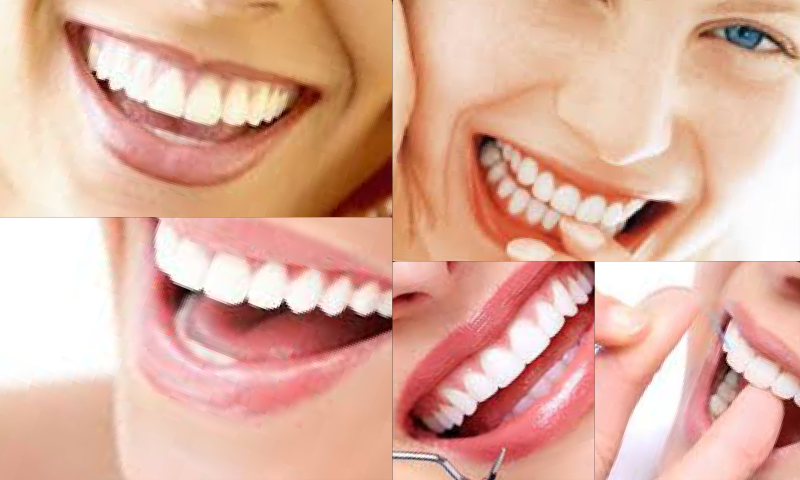 Diş Kozmetiği Yöntemleri İle Gülümsemeniz Artık Daha Güzel!