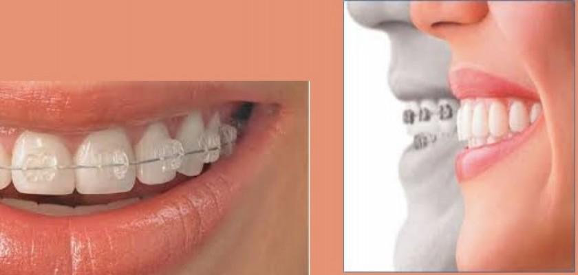 Ortodonti Nedir, Kimlere Uygulanır?