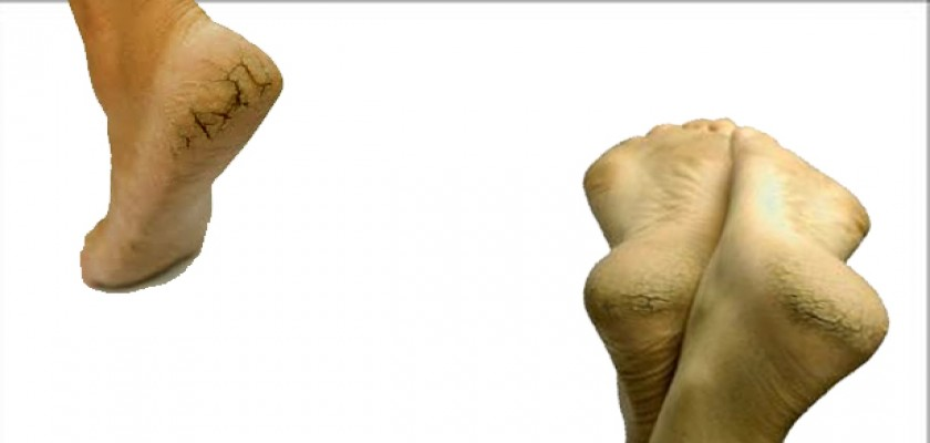 Topuk Çatlakları Neden Kaynaklanır?